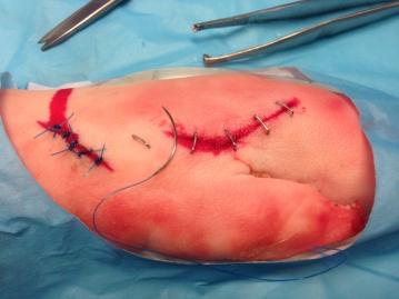 agrafes et points de suture sur pied de cochon